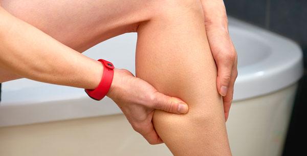 ورزش کردن یک درمان خانگی برای واریس پا