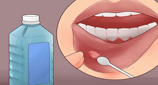 داروی خارجی برای آفت دهان