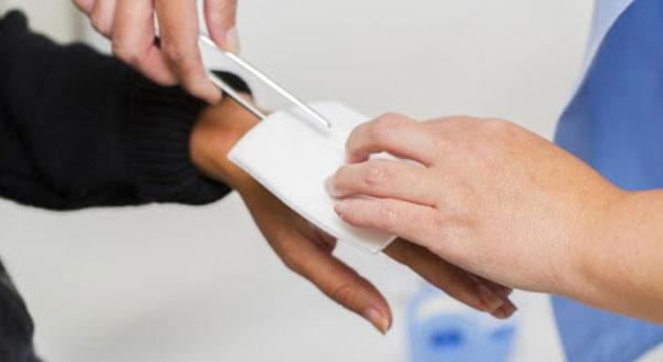 درمان سوختگی بعد از ترکیدن تاول