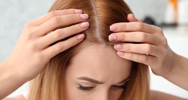 مهمترین علت ریزش مو در زنان