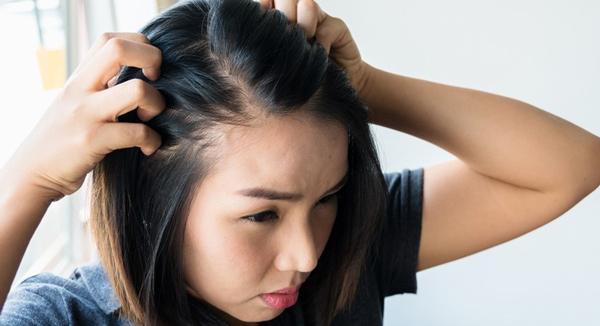 درمان ریزش موی هورمونی در زنان