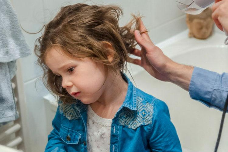 روغن نارگیل برای درمان خانگی موخوره در کودکان